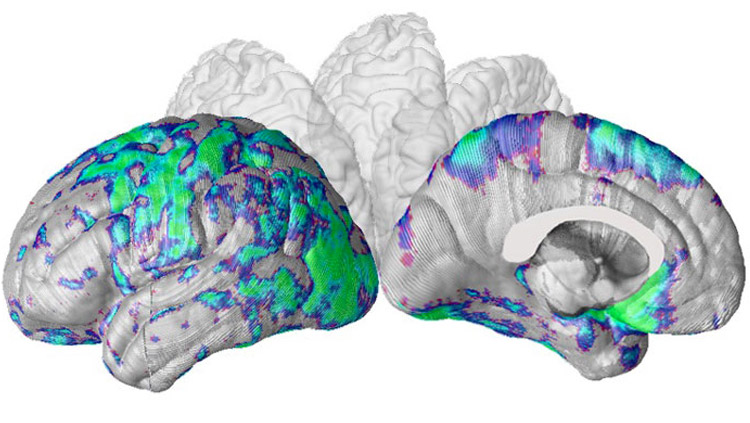 MRI map of the language network in patient with Alzheimer's disease. Image courtesy of Dr. Liana Apostolova, Department of Neurology, David Geffen School of Medicine, UCLA.