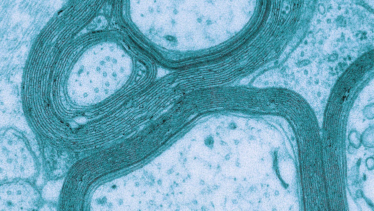 This electron microscopy image shows a cross section of optic nerve from mice lacking NWasp in oligodendrocytes.