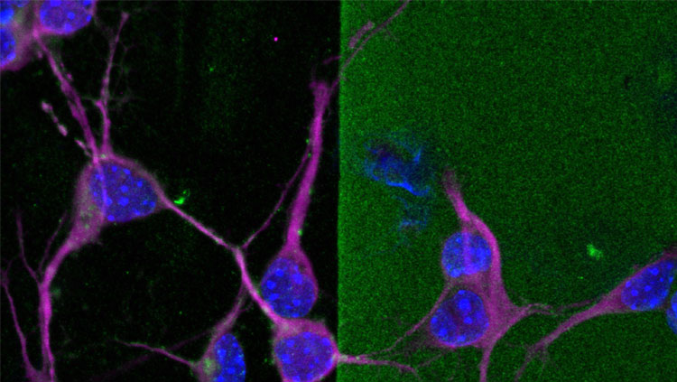 this image shows MAP2+ (magenta) neurites from cultured immature cortical neurons extending into a stripe of chondroitin sulfate proteoglycans (CSPGs; green) treated with chondroitinase ABC (chABC), an enzyme that abolishes CSPGs