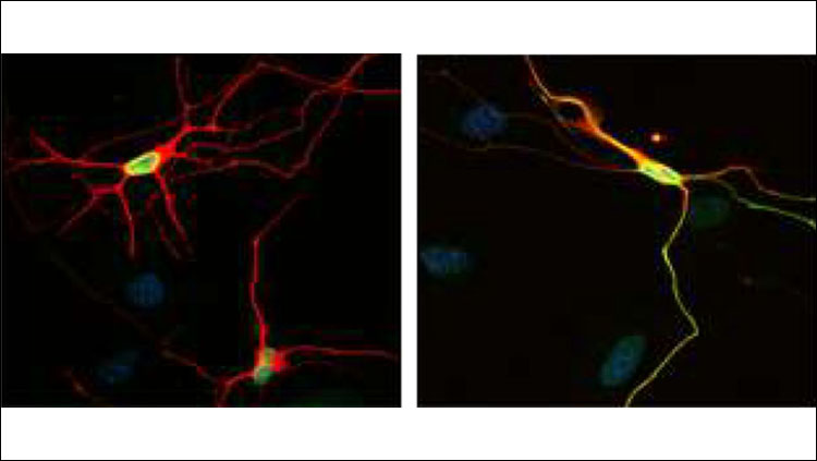 Lamin B1 (green) is localized to the nucleus (blue) in motor neurons (red) derived from control human fibroblasts (left), but is mislocalized to the neurites of neurons derived from DYT1 patient fibroblasts (right). See Ding et al for details.